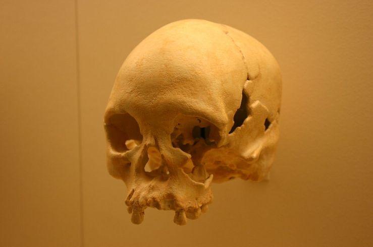 Lapa_Vermelha_IV_Hominid_1-Homo_Sapiens_11,500_Years_Old